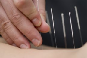acupuncture body points